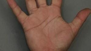 Tamanho do pénis está nos dedos das mãos