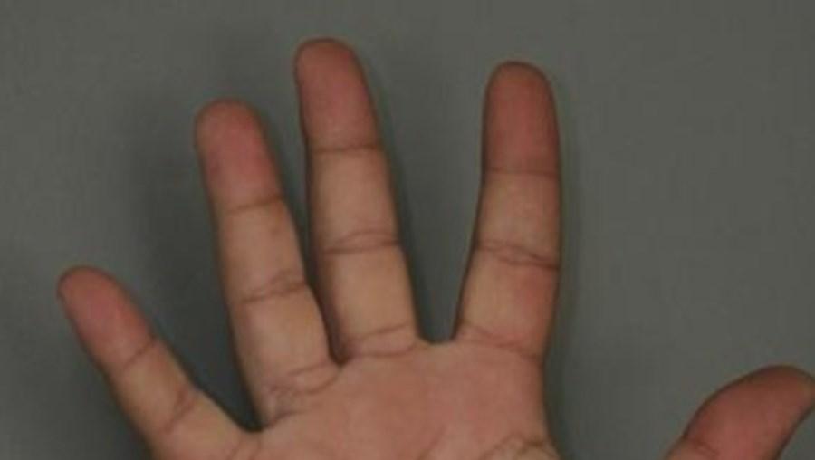pénis, dedos, mãos, anelar, indicador, estudo, cientistas
