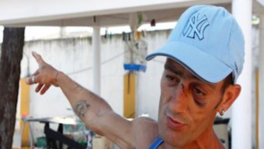 João Roberto foi um dos utentes do centro de acolhimento que foram agredidos