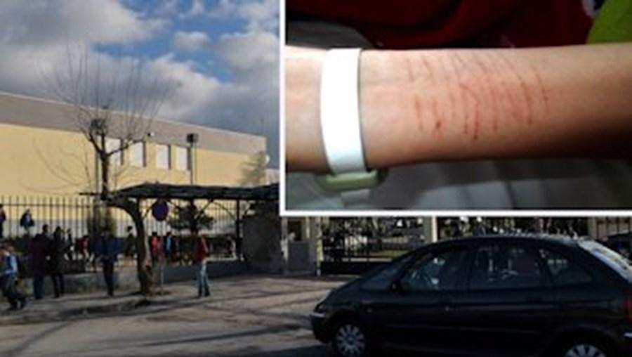 Menor cortou-se com lâmina devido a insultos e perseguição dos colegas de escola, em Viseu