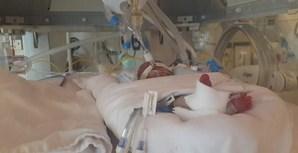 No dia 11 de novembro os médicos deixaram que a mãe tocasse na bebé e falasse para dentro da incubadora