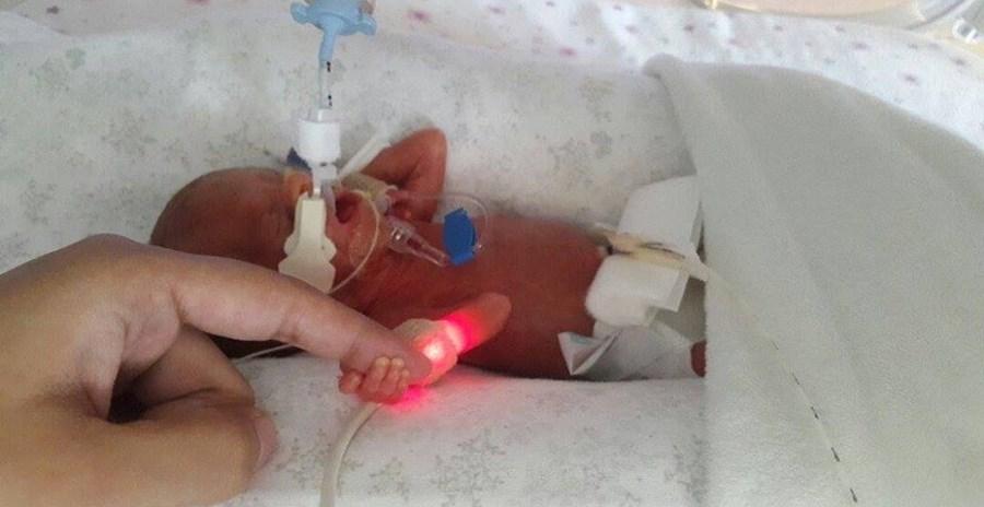 Margarida, a bebé portuguesa que nasceu no Dubai com apenas 25 semanas de gestação, no dia 28 de outubro