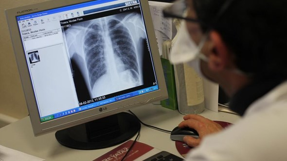 Crianças com espaços verdes em redor das escolas têm melhor função pulmonar