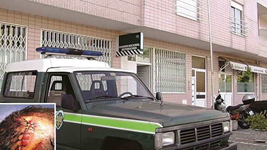 Posto da GNR de Riba d'Ave, onde os agressores têm de se apresentar. Militar sofreu golpe profundo na cabeça (foto pequena)