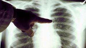 Jovens não-fumadores têm cada vez mais cancro do pulmão