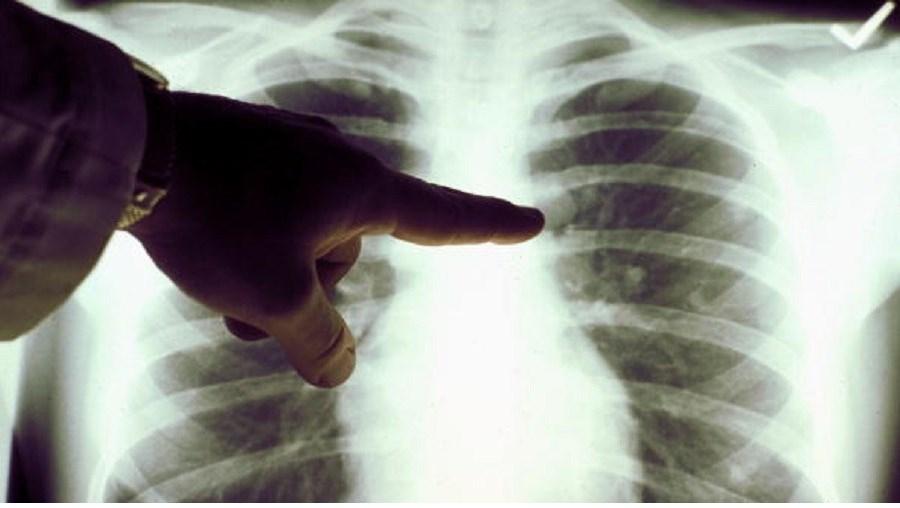Cancro no pulmão é o mais mortífero em Portugal
