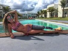 Paola Antonini perdeu a perna esquerda num acidente