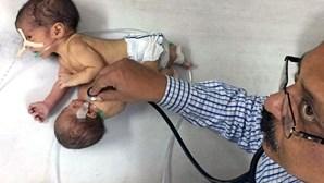 Bebé nasce com cabeça e braços de gémeo parasita
