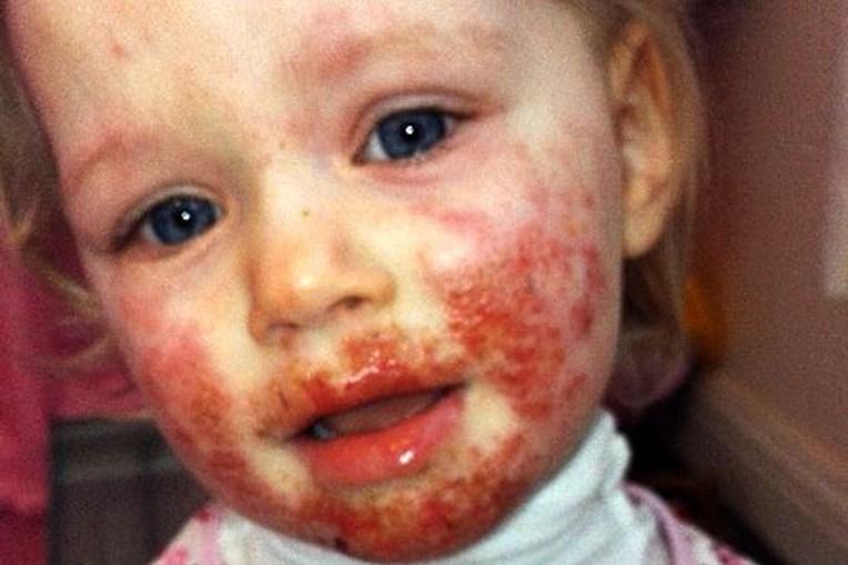 Sienna teve herpes na cara