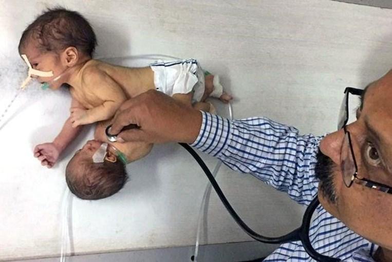 Bebé nasceu com o irmão parasita na zona do tronco