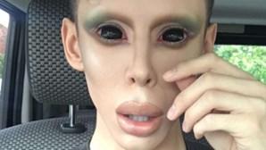 Gasta 58 mil euros para parecer extraterrestre