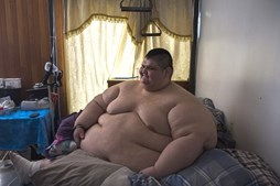 Juan Pedro Franco é o homem mais obeso do mundo