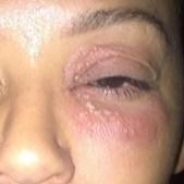 Imagens das agressões sofridas por Mel B