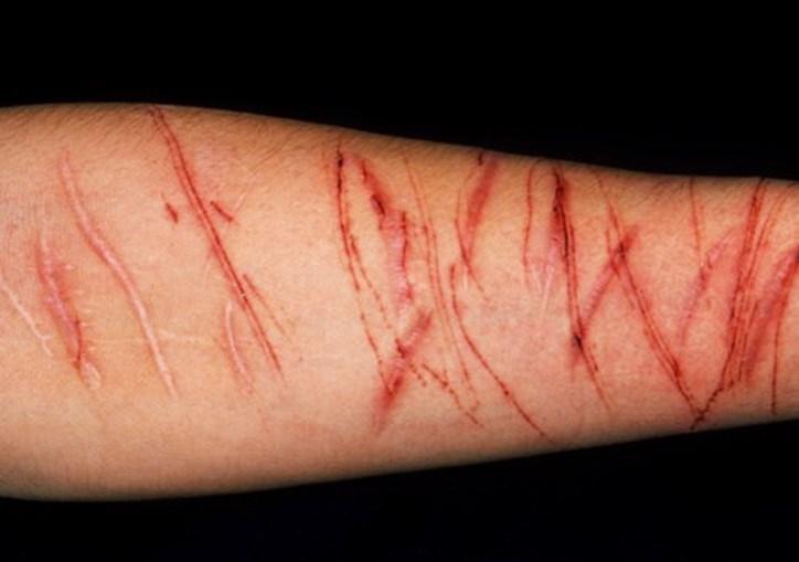 Jovens são incentivados à mutilação e ao suicídio no jogo da 'Baleia Azul'