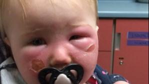 Bebé fica com queimaduras após uso de protetor solar