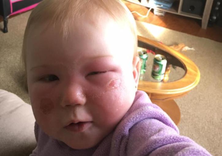 Kyla de um ano ficou com quemaduras de segundo grau no rosto