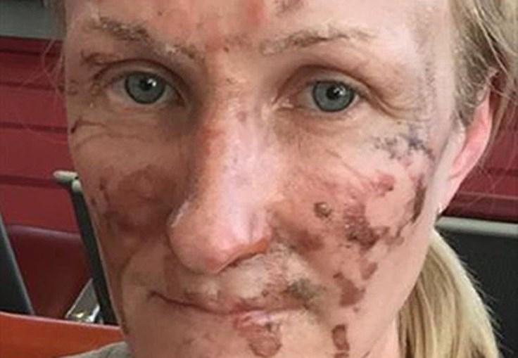Erica Osbourne, de Bristol, Inglaterra, sofreu queimaduras de segundo grau