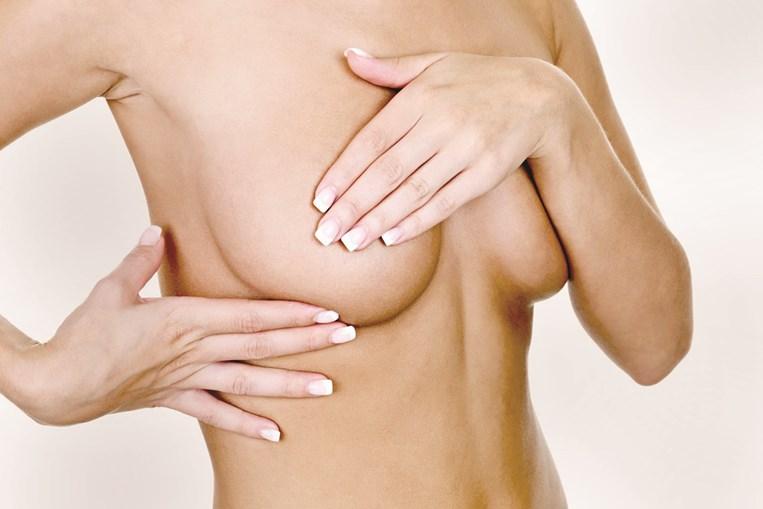 Assimetrias nas mamas tratadas com cirurgia