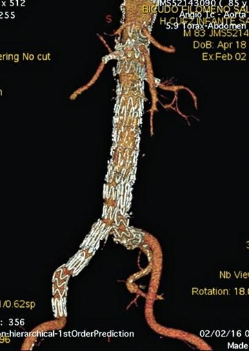 O mesmo aneurisma foi corrigido através de uma endovascular, em que é colocada uma endoprótese na aorta