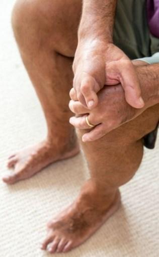 Jeremy Payton substituiu dedos da mão pelos dos pés
