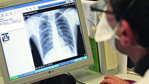 Pneumonia mata 23 pessoas por dia em Portugal