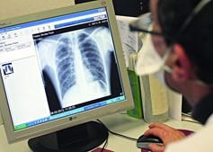 Diagnóstico é realizado através de uma radiografia ao tórax