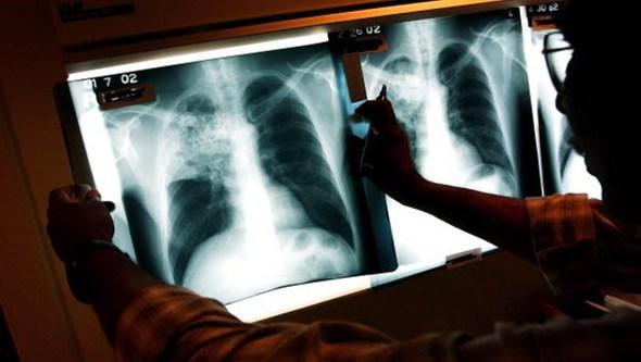 Deteção da Tuberculose está mais difícil devido à pandemia