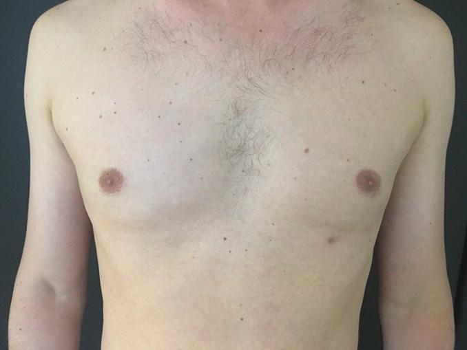 Melhoria começa a ser visível no primeiro mês após a cirurgia