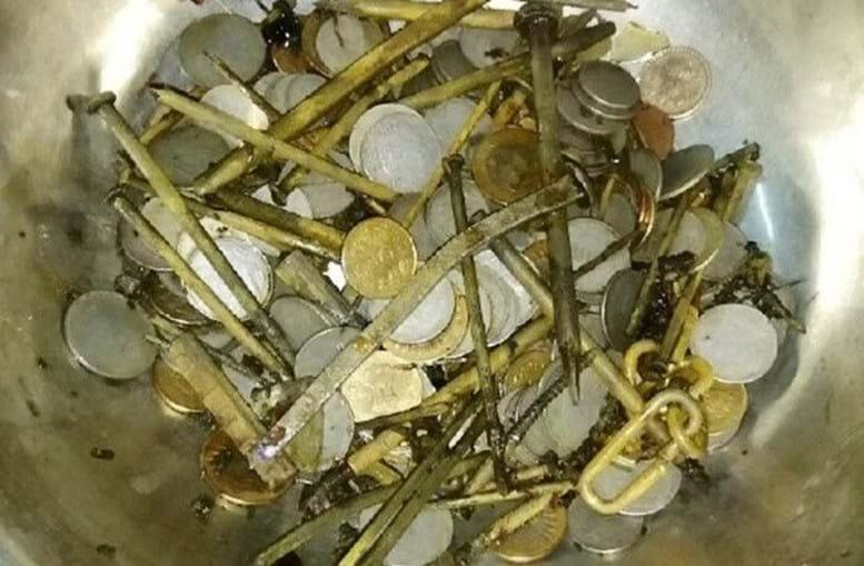 Médicos encontram 263 moedas e 100 pregos em estômago de paciente