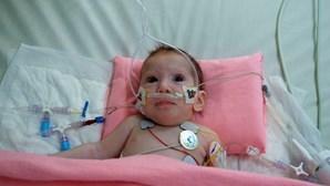 Bebé sobrevive a operação para retirar gémea parasita