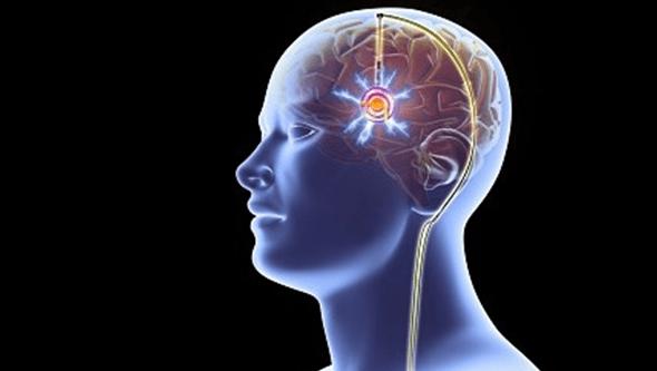 Máquina de terapia ultrassom reduz Parkinson em 80%