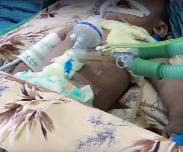 Bebé de 11 meses tinha 16 agulhas dentro do corpo