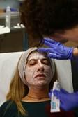 Tratamento com laser elimina marcas de acne na pele