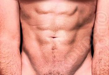 Lichidul pre ejaculator