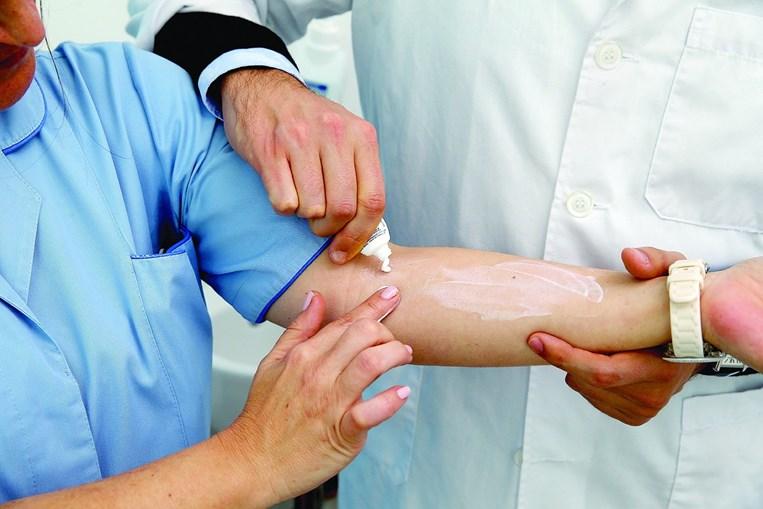 """Lesões aparecem sobretudo nos membros em que há um contacto """"de pele com pele"""", como na região do antebraço"""