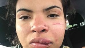 Partidos questionam Governo após agressão racista a jovem colombiana