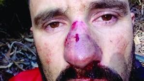 Cabo de aço fere motociclista na cara e nos braços