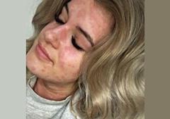 Arianna Knet sofre de uma rara alergia ao frio