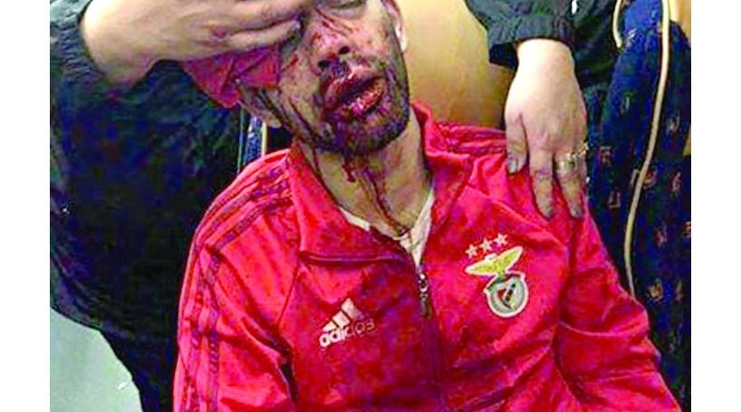 Benfica compara ataque ao autocarro à invasão à Academia do Sporting ... 5c84ec64bd779