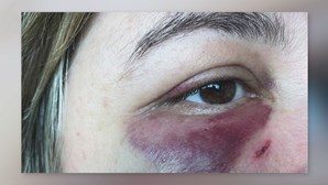 Mulher de dirigente do Sporting com marcas após agressão no Dragão Caixa