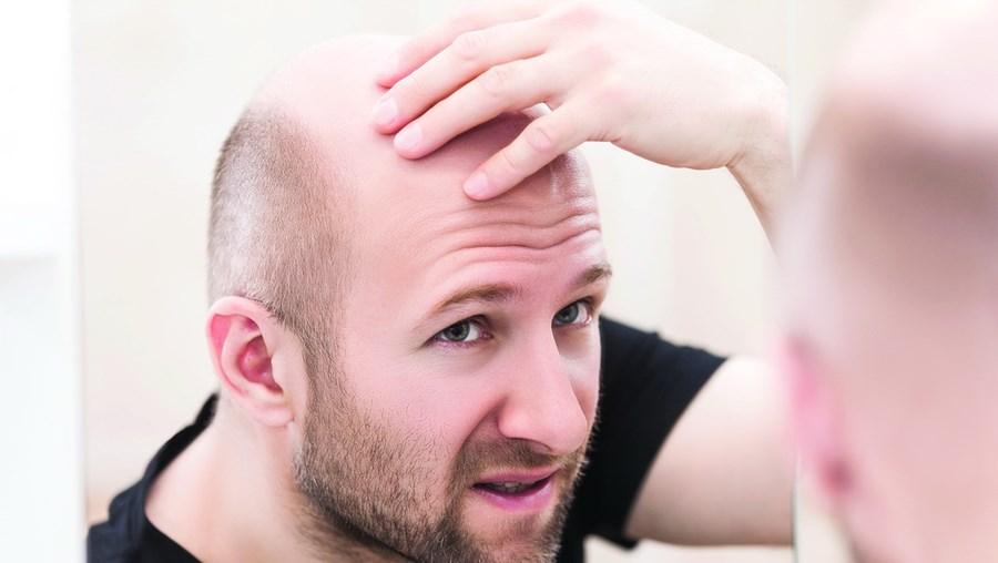 Queda de cabelo é um problema que afeta sobretudo os homens