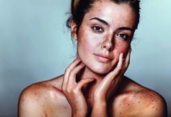 Sinais na pele deverão merecer especial cuidado. Atente a modificações de sinais já existentes