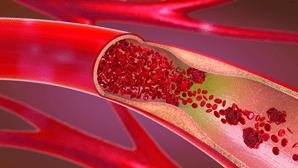 Os tratamentos da cirurgia vascular