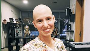 """É só cabelo...vai dar tudo certo"": bloguer dos 'Honeymooners' rapa a cabeça na luta contra o cancro"