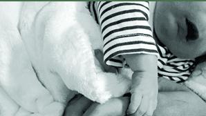 Pais mostram rosto do bebé que nasceu sem olhos, nariz e parte do crânio
