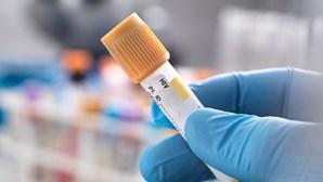 DGS apela para realização de testes de VIH, hepatites e infeções sexualmente transmissíveis