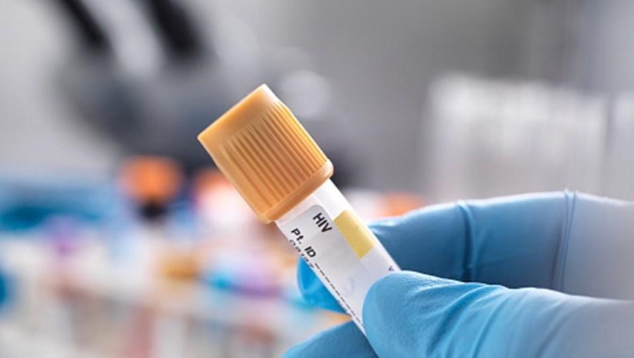 Testes ao VIH