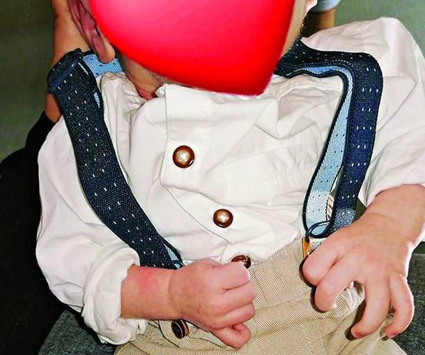 'Bebé sem rosto' já está em casa com os pais