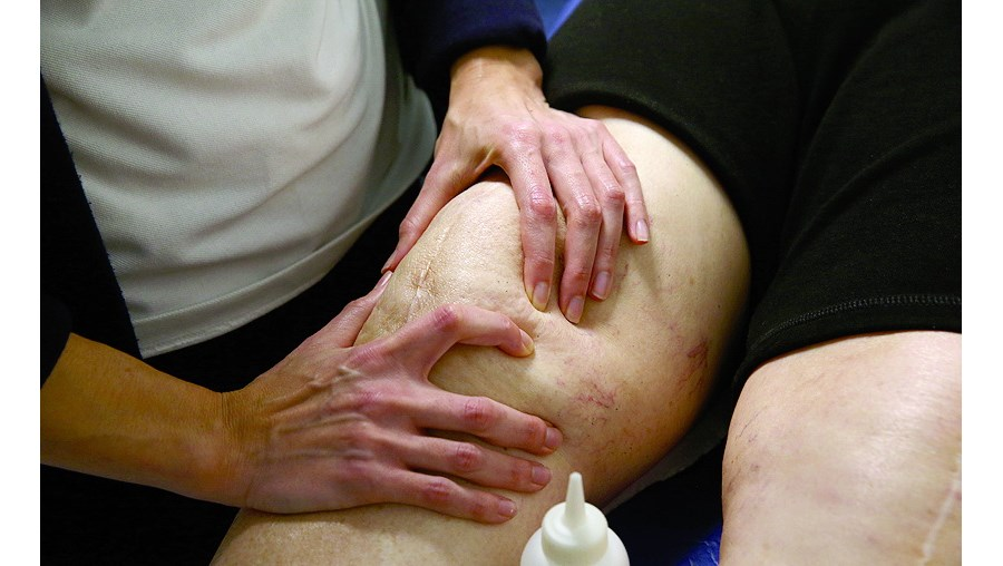 Fisioterapia ajuda, de acordo com os especialistas, na recuperação após uma intervenção minimamente invasiva ao joelho. É comum a perda muscular durante a  recuperação