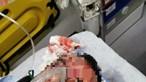 Motorista que denunciou mulher à PSP na Amadora internado em estado grave após ter sido espancado